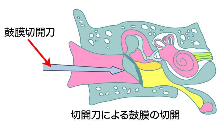 鼓膜切開術
