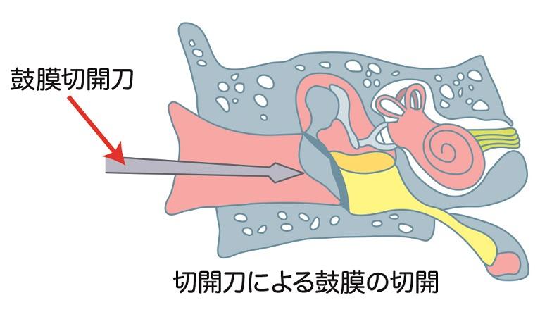 重度の急性中耳炎の治療法