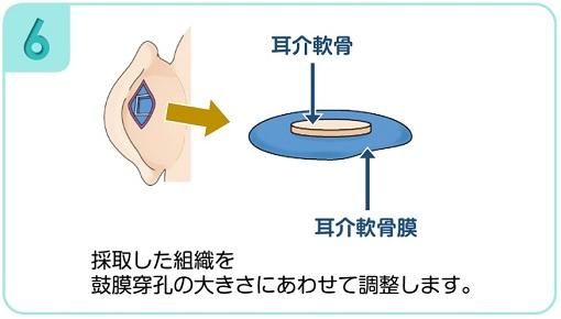採取した組織を鼓膜穿孔の大きさにあわせて調整します。