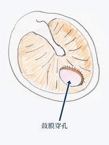 鼓膜に穴が開いている。
