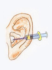 耳の入り口に麻酔をします。