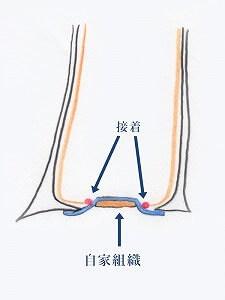 軟骨と結合織を接着したところ。