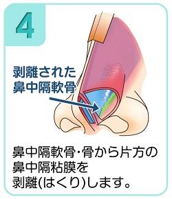 鼻中隔軟骨・骨から片方の鼻中隔粘膜を剥離