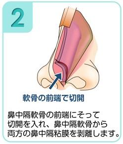 鼻中隔軟骨から両方の鼻中隔粘膜を剥離