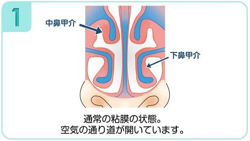 下鼻甲介手術(粘膜下下鼻甲介骨切除術・下鼻甲介粘膜切除術)1