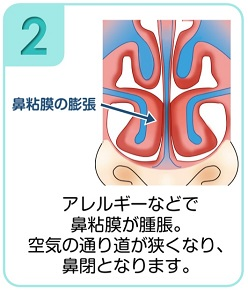 下鼻甲介手術(粘膜下下鼻甲介骨切除術・下鼻甲介粘膜切除術)2
