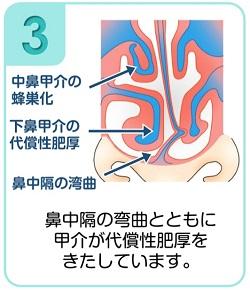 下鼻甲介手術(粘膜下下鼻甲介骨切除術・下鼻甲介粘膜切除術)3