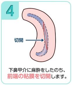 下鼻甲介手術(粘膜下下鼻甲介骨切除術・下鼻甲介粘膜切除術)4