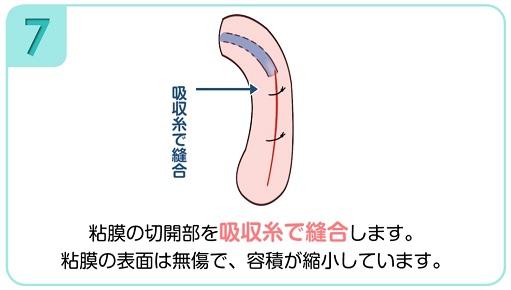 下鼻甲介手術(粘膜下下鼻甲介骨切除術・下鼻甲介粘膜切除術)7