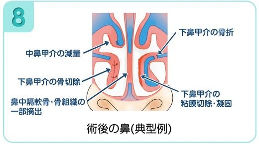 下鼻甲介手術(粘膜下下鼻甲介骨切除術・下鼻甲介粘膜切除術)8