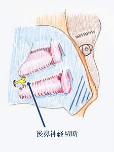 後鼻神経切断術2