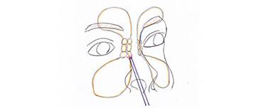 鼻から内視鏡を挿入し、副鼻腔内の視野を広げます。