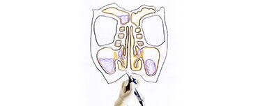 マイクロデブリッダーという機器で副鼻腔内の病的な粘膜やポリープを切除・吸引します。