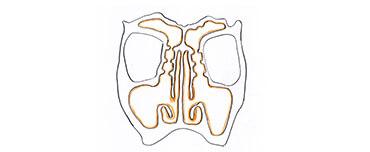 病変とポリープが取り除かれると各副鼻腔が鼻腔へと解放します。