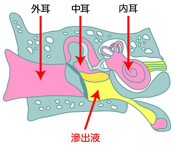 滲出性中耳炎は症状に気づきにくい